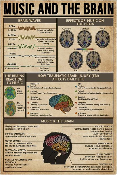Music and the brain poster